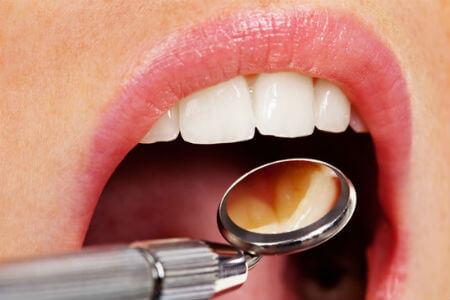 odontología y dentista estético