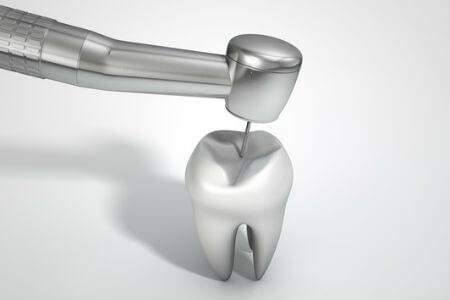 prótesis dentista en Madrid