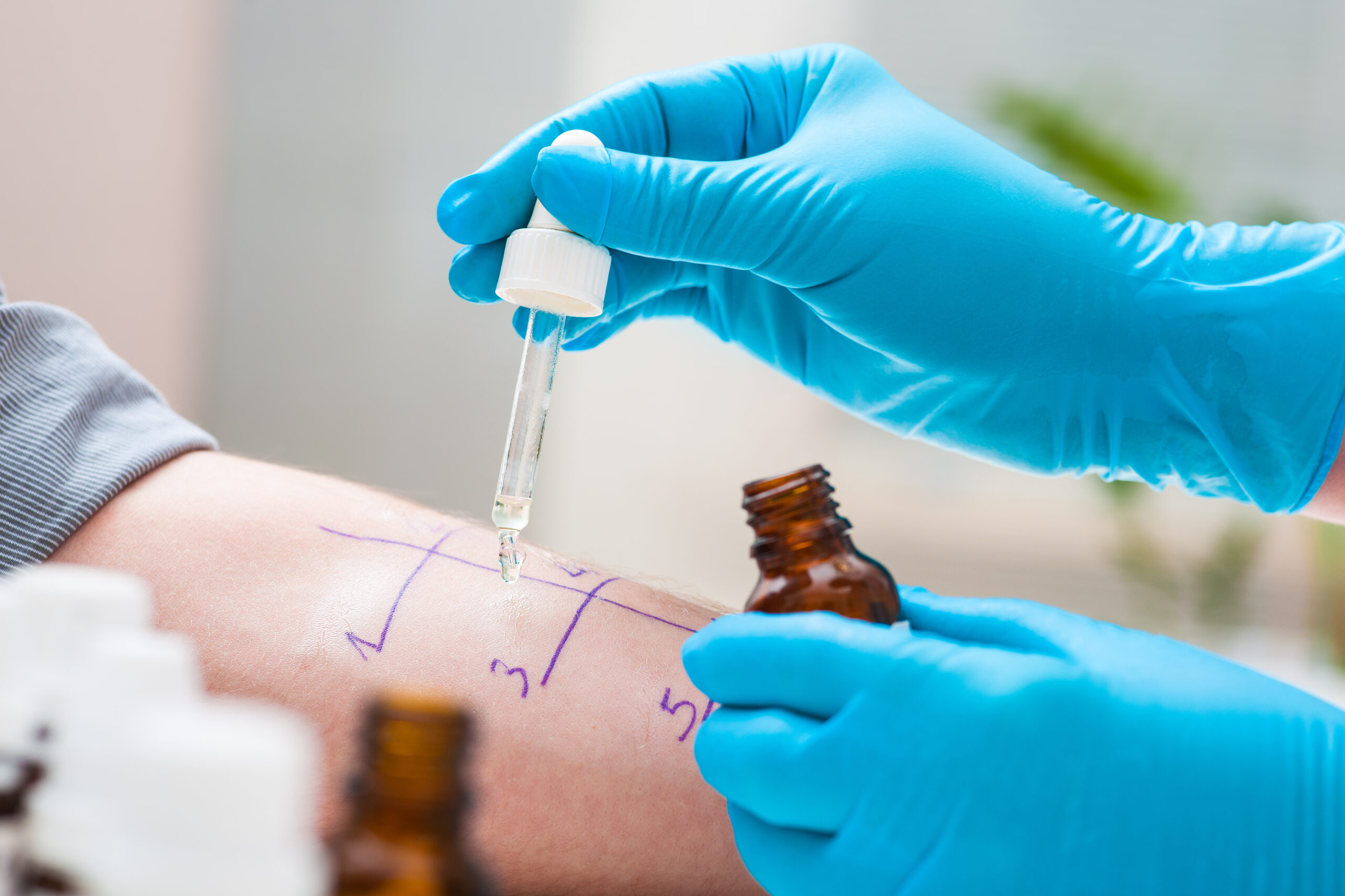 Rinitis alérgica en Clínica DKF