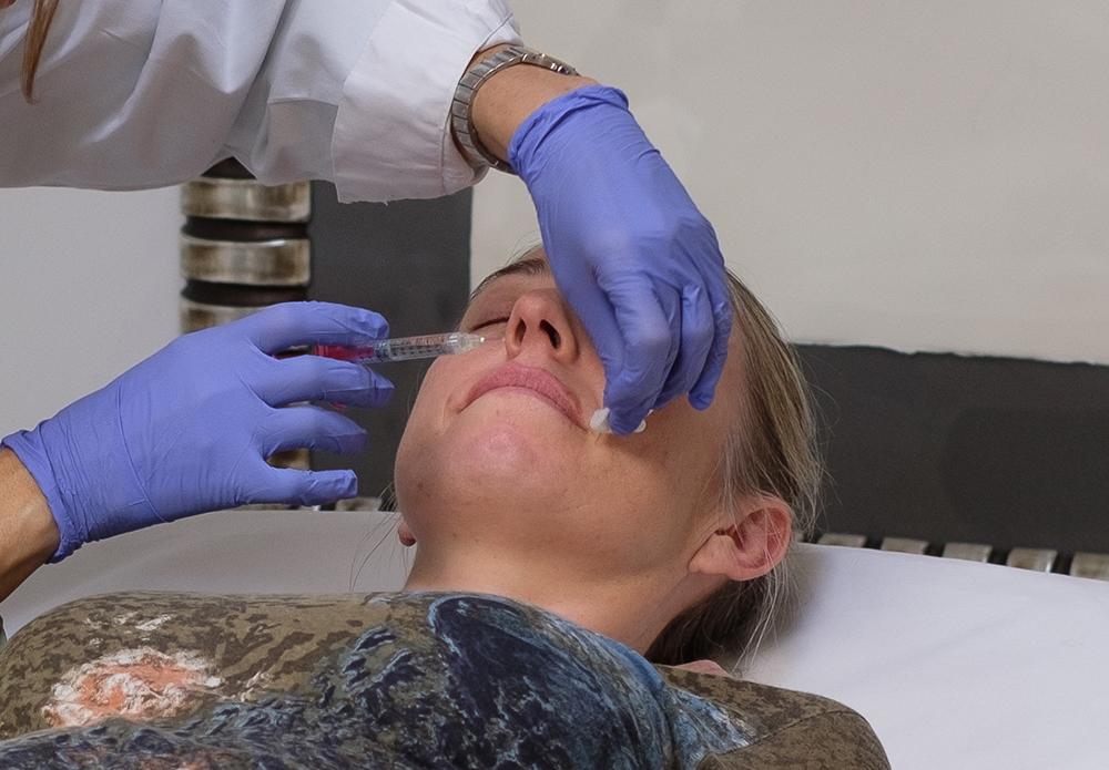 Tratamientos con botox en El Viso de Madrid - Clínica DKF